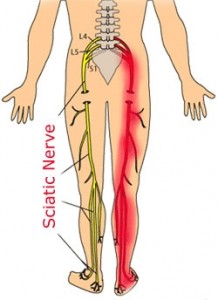 Frederick Chiropractors offer treatment for Sciatica Pain